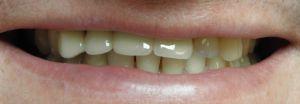 uśmiech pacjenta przedleczeniem