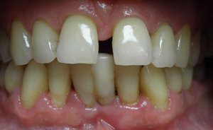 wędzidełko języka diastema