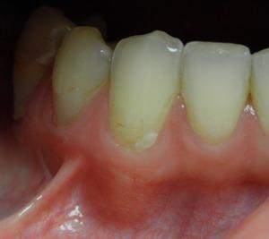 wędzidełko przy zębie