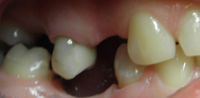 wysunięcie zęba zkości