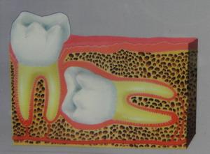 zatrzymana ósemka chirurgia stomatologiczna