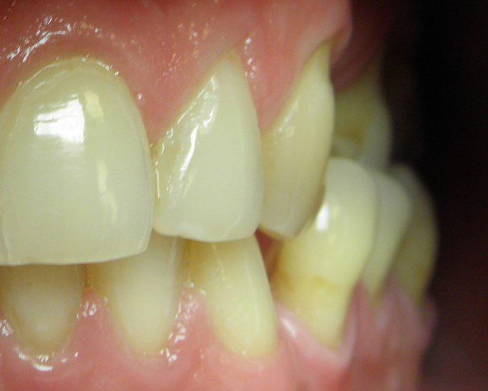 Zgryz krzyżowy-odwrotne zachodzenie zębów